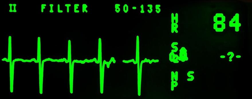 electrocardiogram-16948_1280