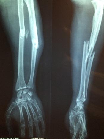 fracture-bone-2333164_1920