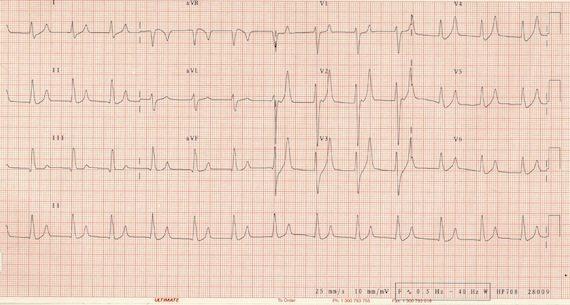 ECG_Hyperkalaemia_7.1_s
