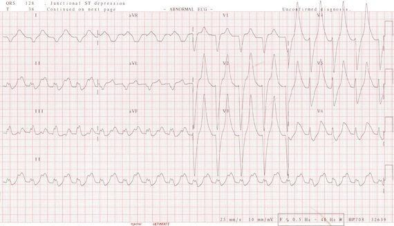 ECG_Potassium_9.2_s