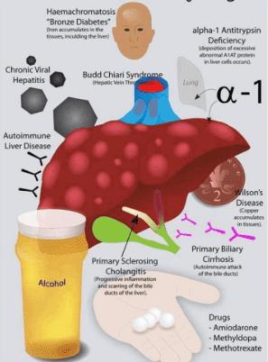 cirrhosis causes