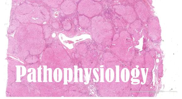 cirrhosis pathology